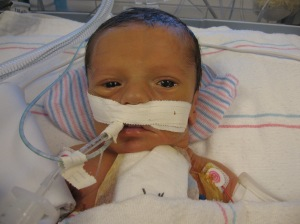 10-09-08 Three days after open heart surgery