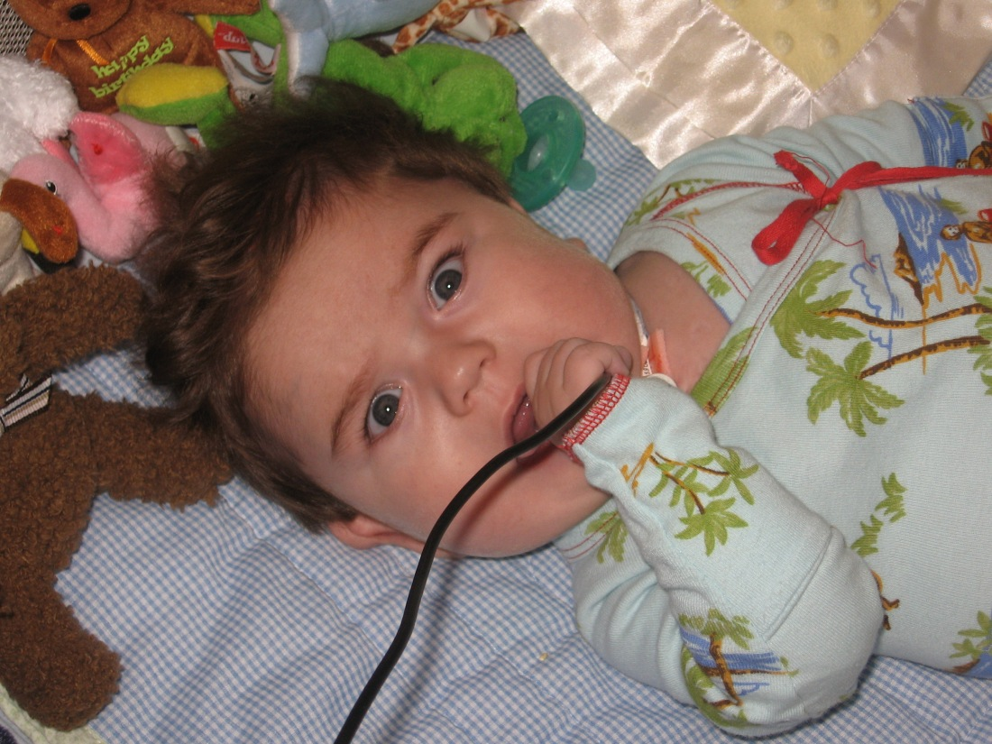 """Look Mommy!  I can chew on the suction unit electrical cord!""  O, good grief!"