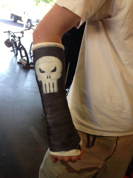 One is never to old to have one's favorite Marvel comic antihero logo spray-painted on his cast...thanks to Dad.